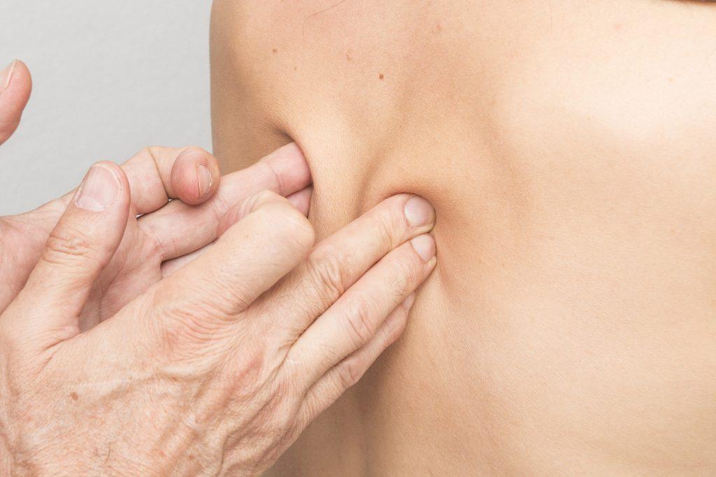 BGM BIndegewebsmassage Massage Therapie Praxis Gesundheit Rücken